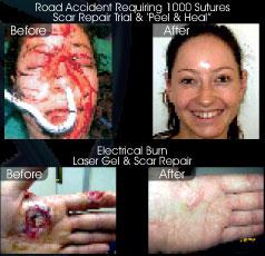 scars-image